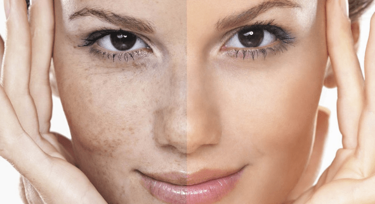 hyperpigmentation and wrinkles