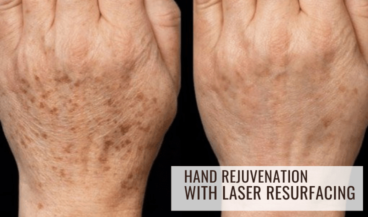 hand rejuvenation with laser resurfacing for young look and feel