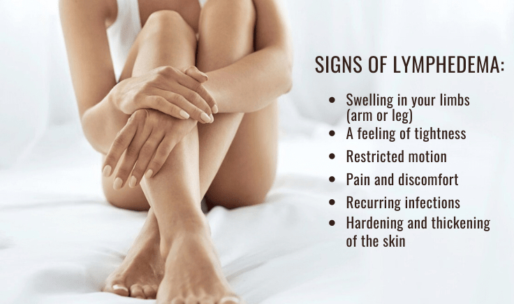 signs of lymphedema