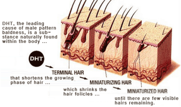 what causes the increased male pattern baldness