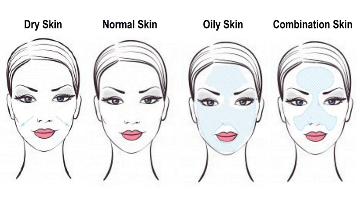which skin types are best suited for radiofrequency facial treatment