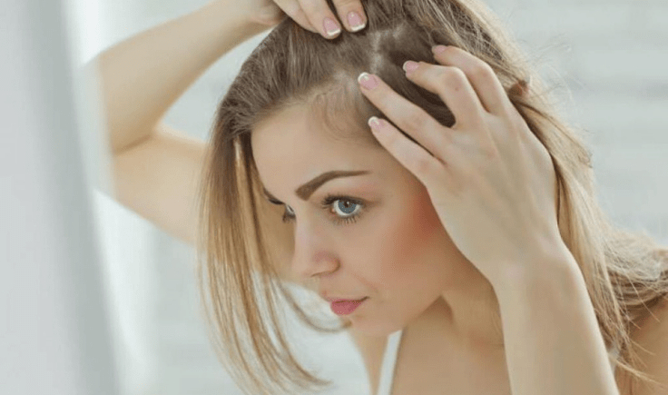 the problem of receding hairline women