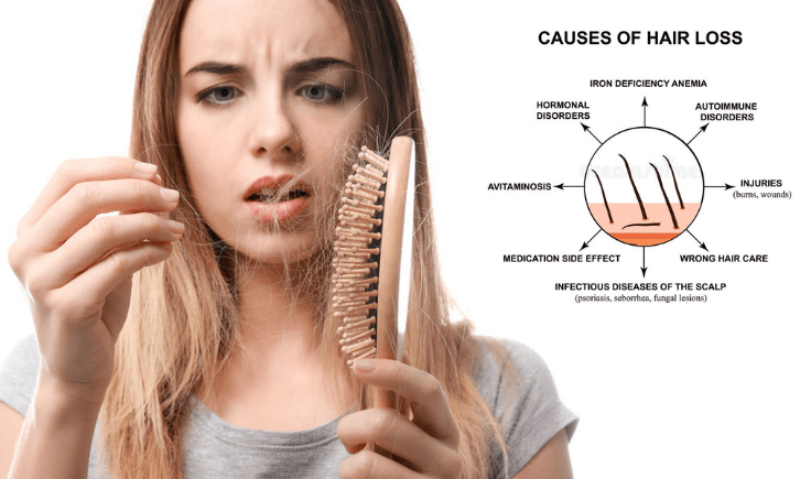 what are the causes of receding hairline in women