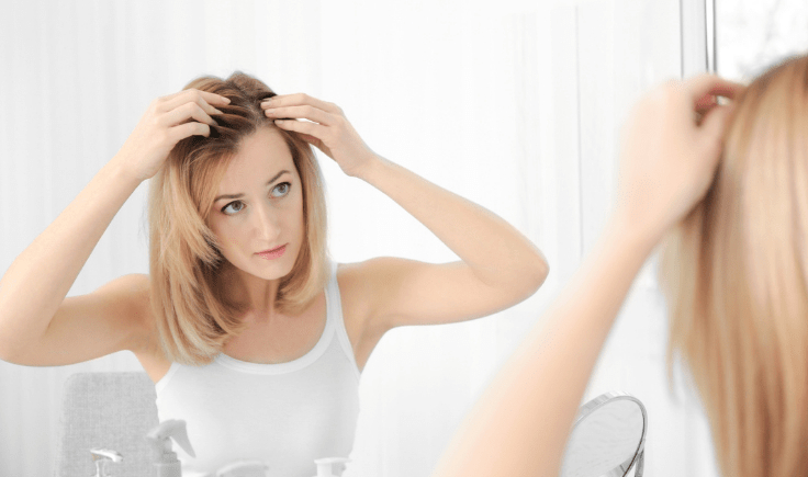 what causes female receding hairline