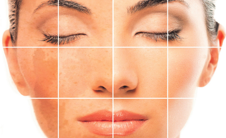 A grid face of biohacker with pigmentation issues